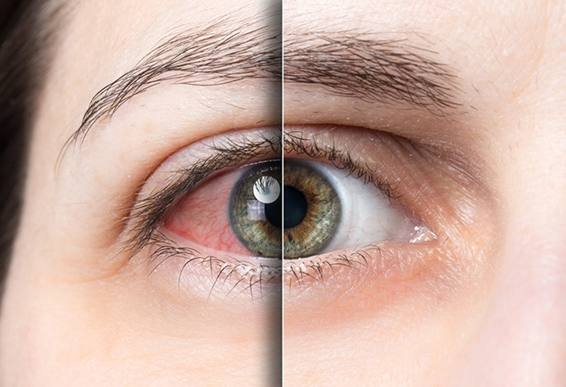 close up of human eye before and after dry eye treatment